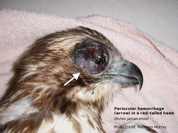 RTH periocular hemorrhage